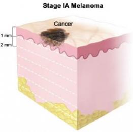 Четыре стадии меланомы